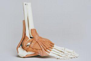 Treating Misaligned Feet